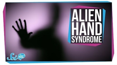 S2018E04 - Alien Hand Syndrome: When a Limb Goes Rogue